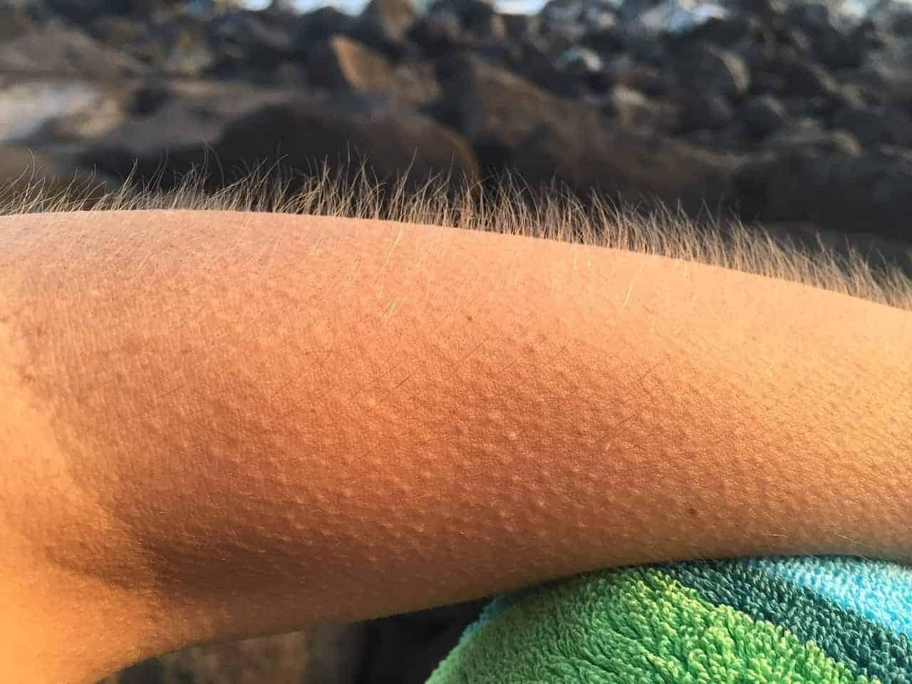 goosebumps arm